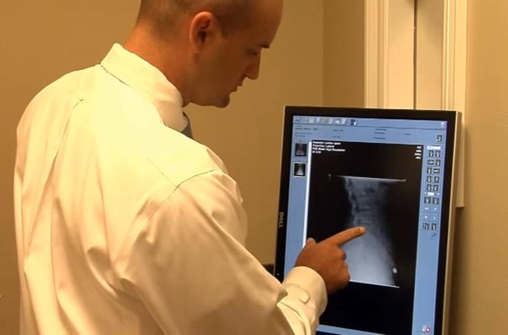 pensacola-chiropractor-blake-gilmore-x-ray